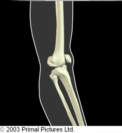 Figure 5. Mechanism of injury for ACL tear