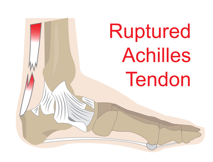 bouncing back from an achilles tendon injury medfit network