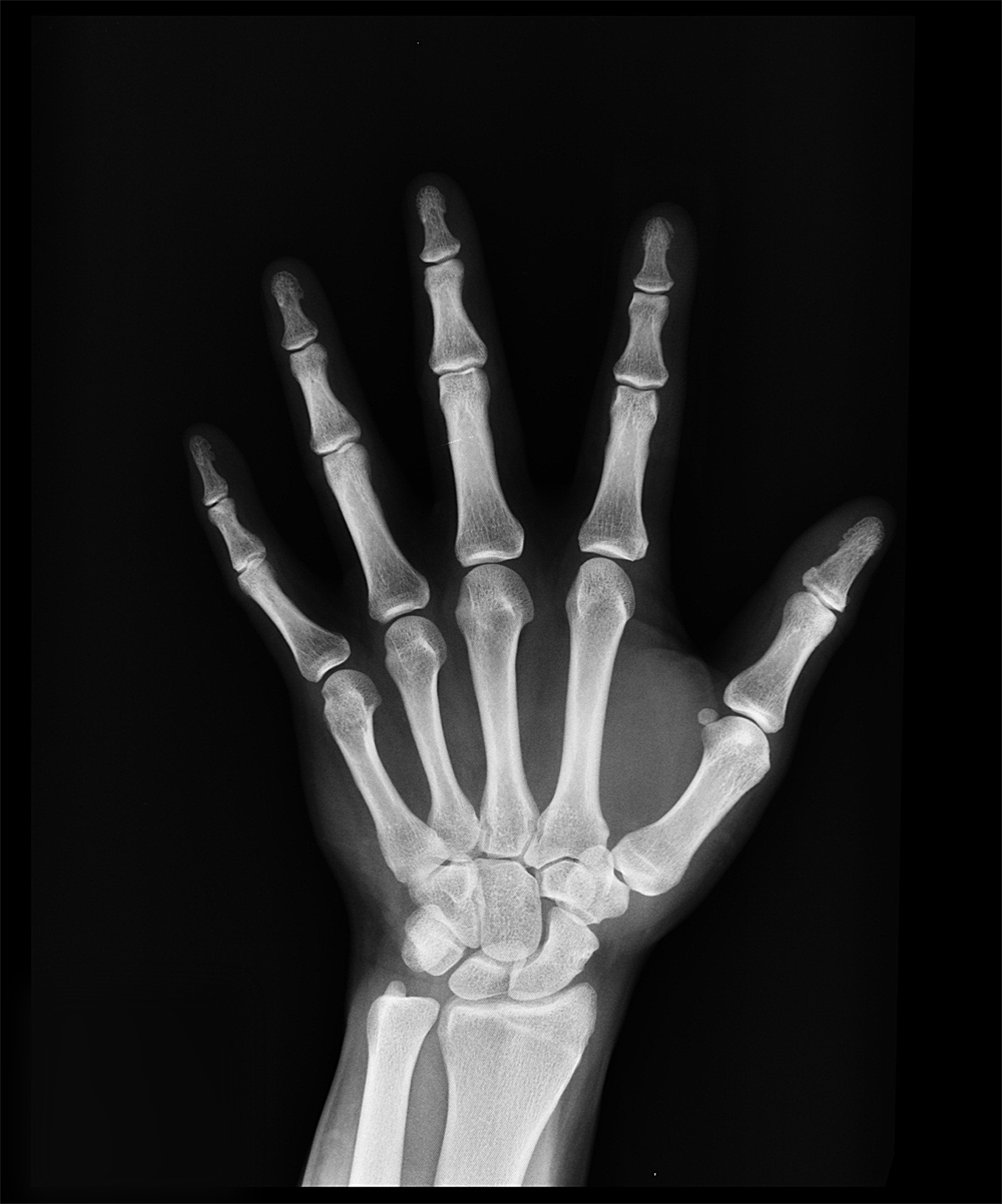 hand xray bones