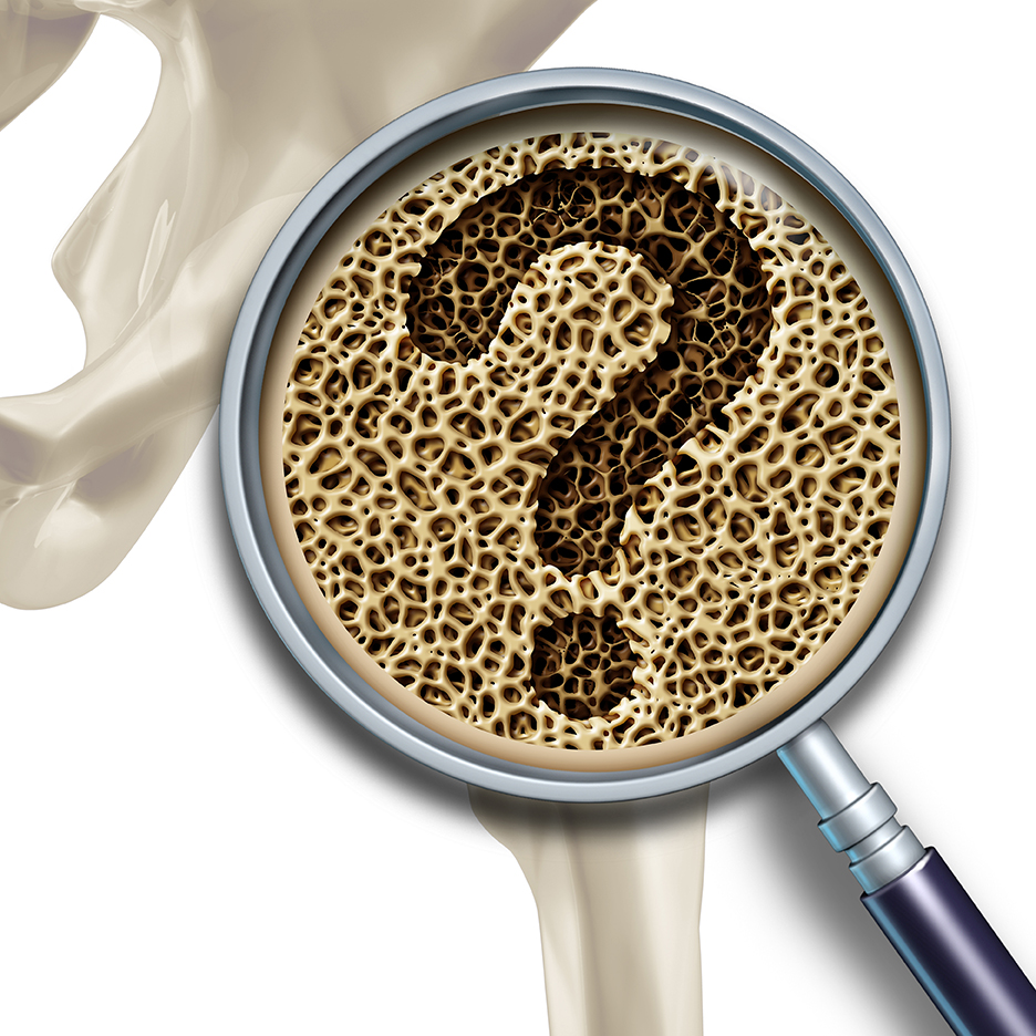 bone-health-question-osteoporosis
