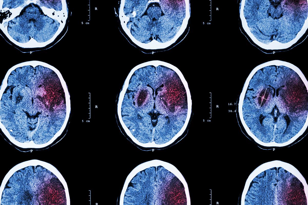 Stroke-Brain-MRI